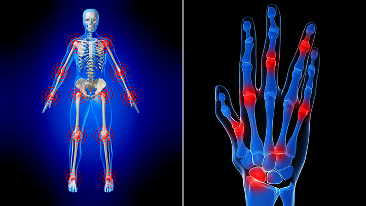 Eficacia de la acupuntura en el tratamiento de la Artritis Reumatoide