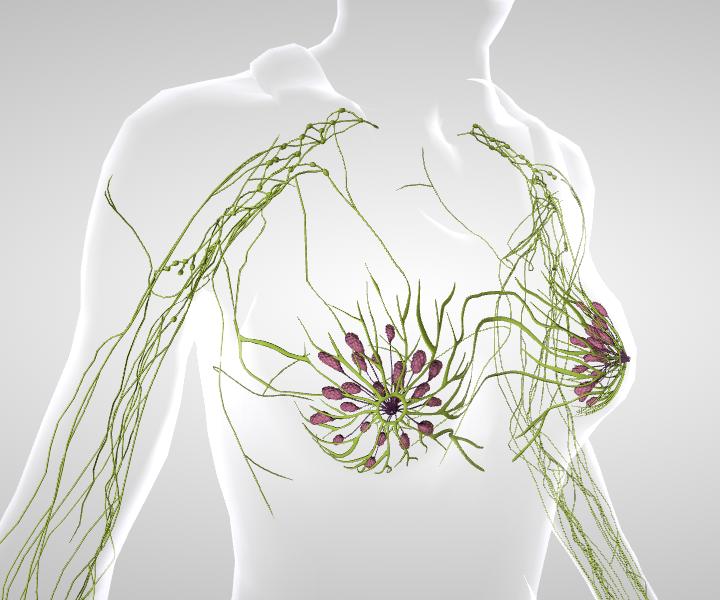 Eficacia de la acupuntura en el tratamiento del linfedema asociado a cáncer de mama