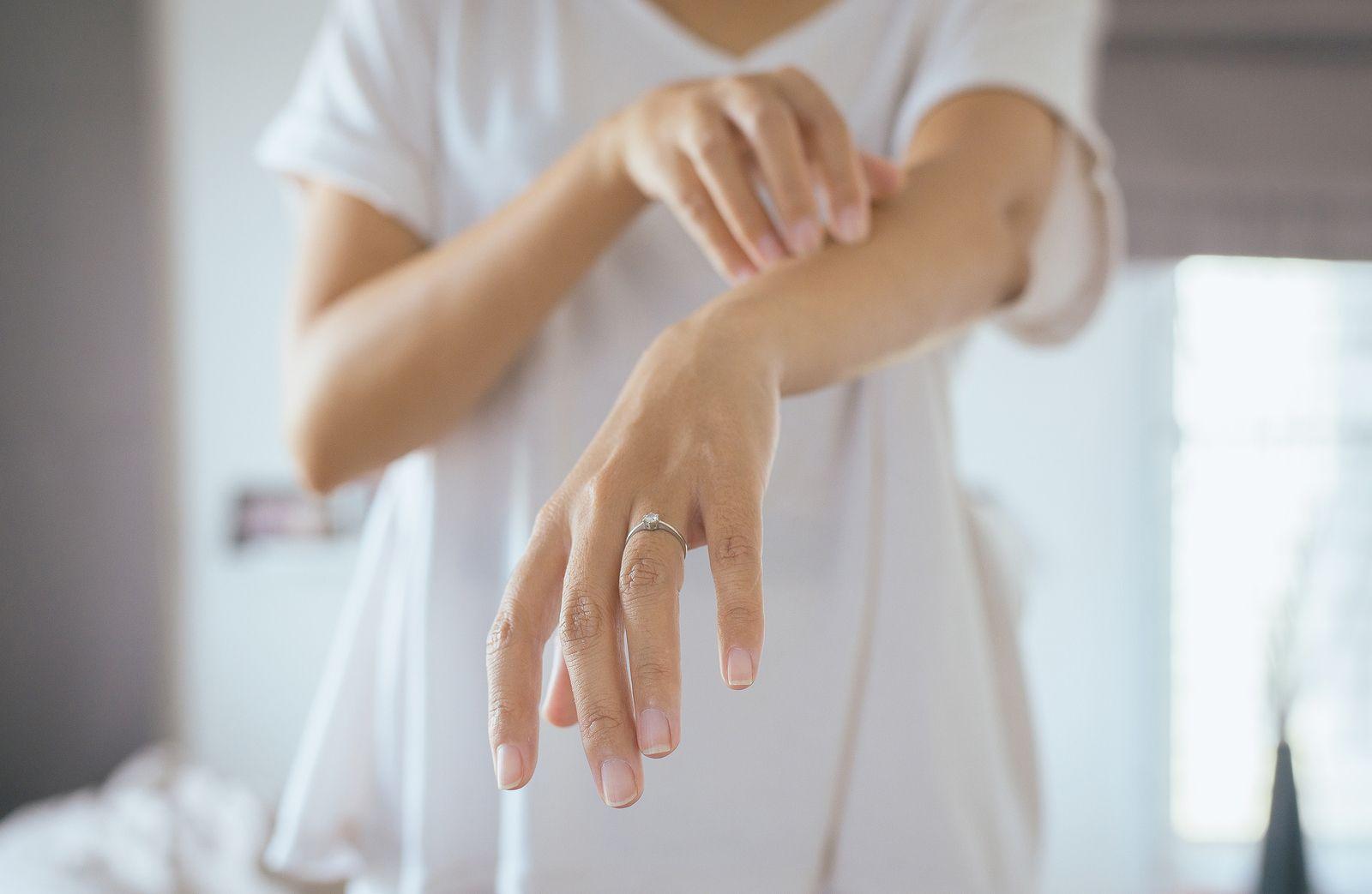 Eficacia y seguridad del tratamiento de la Dermatitis Atópica con acupuntura frente al tratamiento con Cetirizina